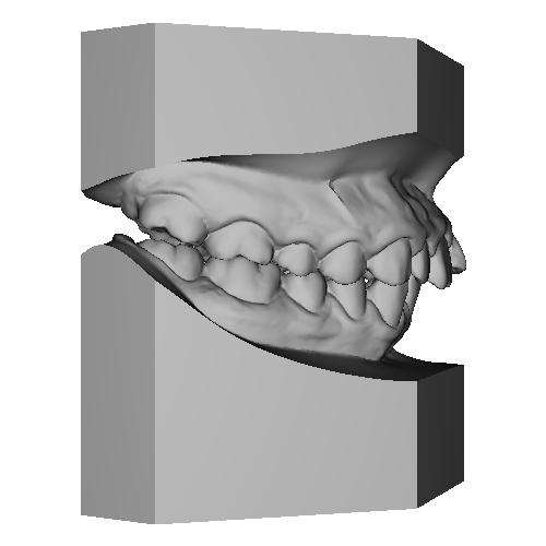 上顎前突 maxillary protrusion 叢生 crowding治療前 Initial