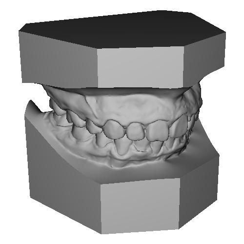 上顎前突 maxillary protrusion 叢生 crowding 治療後 After