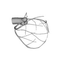 coronary artery 3Dデータ 冠動脈