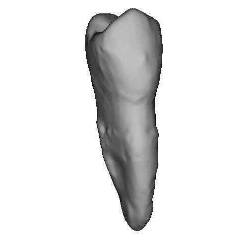上顎第一小臼歯 Premolar(プレモーラー)Tooth(トゥース)Upper-4.stl