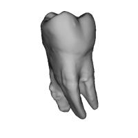 上顎第一大臼歯 Molar(モーラー)Tooth(トゥース)Upper-6.stl