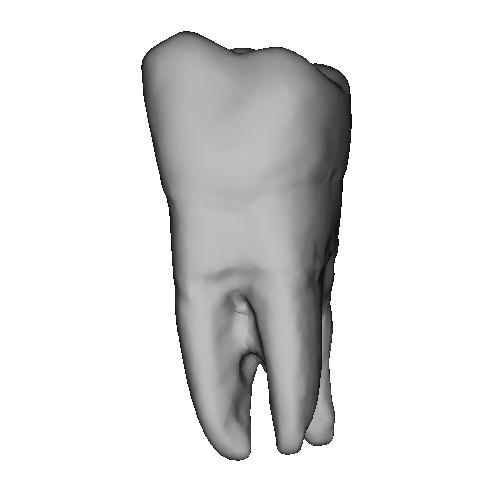 上顎第二大臼歯 Molar(モーラー)Tooth(トゥース)Upper-7.stl